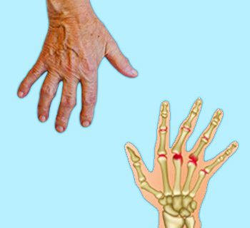 A New Prognosis Tool for Rheumatoid Arthritis