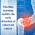 Machine learning enables the early detection of colorectal cancer